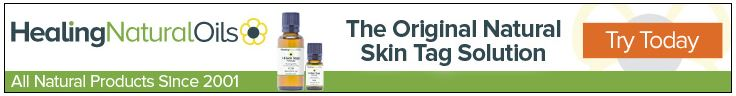 How to get rid of Skin tags_healthtenfold2