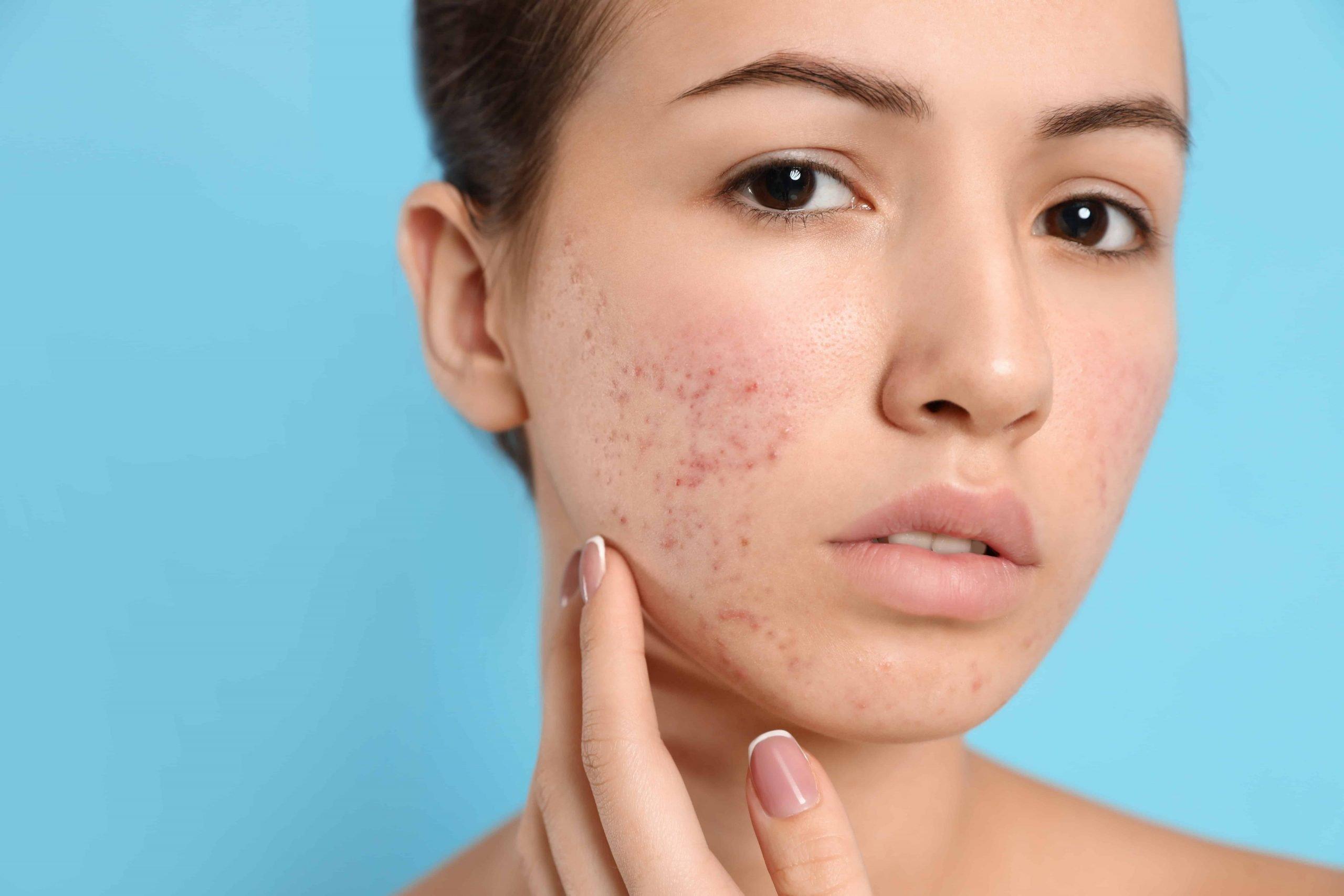 skin problems, acne remedies