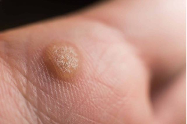 how do you get warts