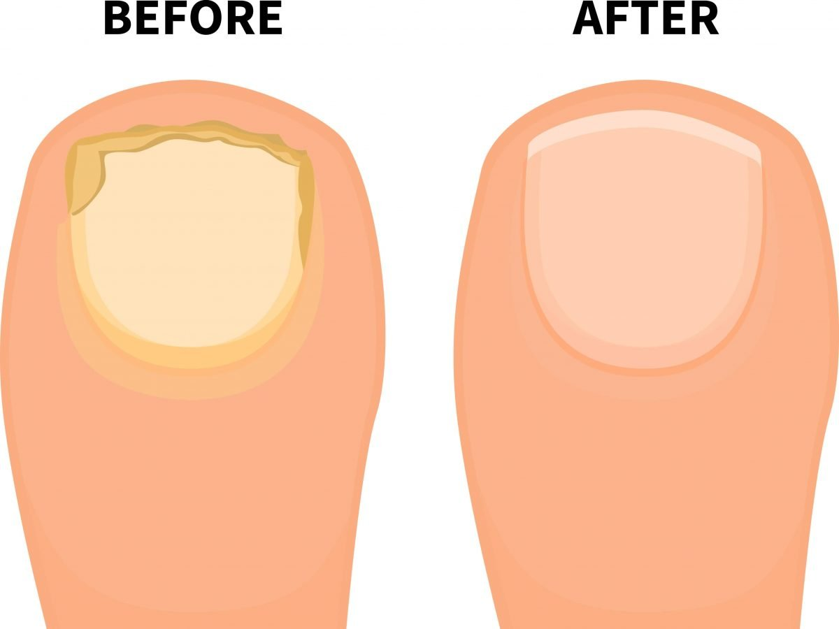 how to treat nail fungus on toes