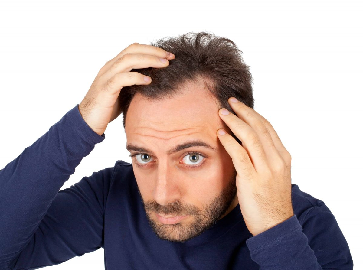 can dandruff cause hair loss