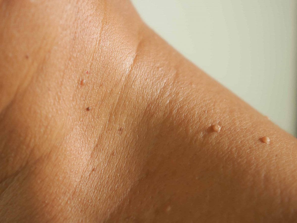 What Causes Skin Tags on Neck